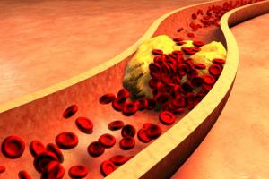 Cholesterol indicatie klachten