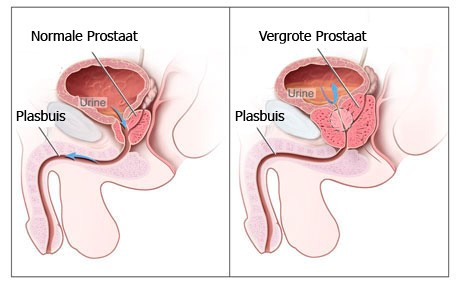 Prostaat-prestatie lage rug pijn