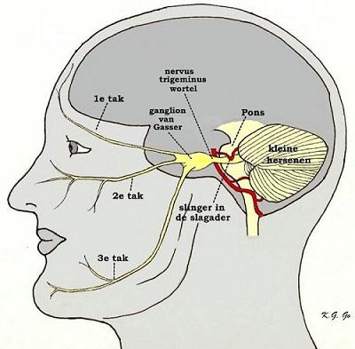 trigeminusneuralgie aangezichtspijn