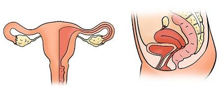 Endometriose behandeling